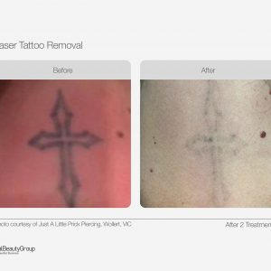 Laser Tattoo Removal Before & After 02