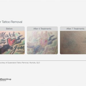 Laser Tattoo Removal Before & After 04